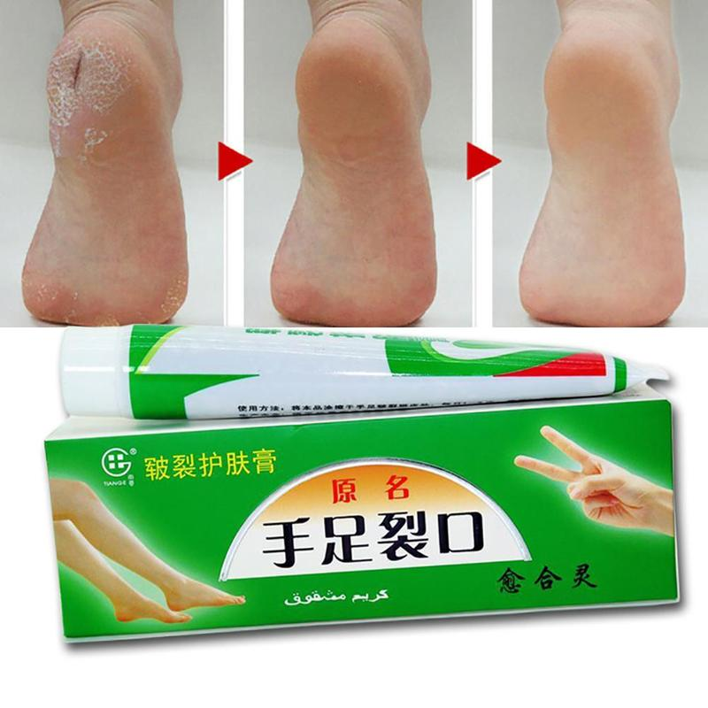 Plantar Crack Care Cream 100% Herbal Hand Foot Skin Splitting Cure Hydrating Ointment Chinese Medicine Cleft Treatment Plaster