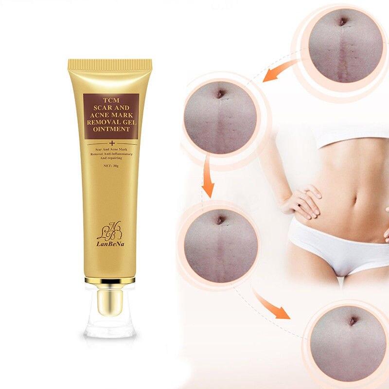 LanBeNa, 30 г, для женщин, TCM, средство для удаления шрамов, крем, увлажняющий гель, мазь, акне и рубцов, восстанавливающий крем, уход за кожей лица, продукты TSLM2