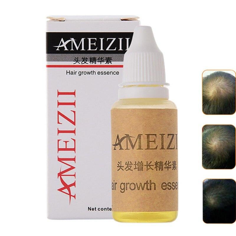 New Upgrade Hair Growth Restoration Growth Essence Hair Loss Dense Hair Restoration Essential Oils Hair fast Growth Serum