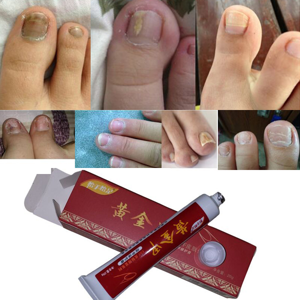 Nail Fungus Treatment / Onychomycosis Paronychia / Anti Fungal Nail Infection Good Result Chinese Herbal Toe Nail Treatment