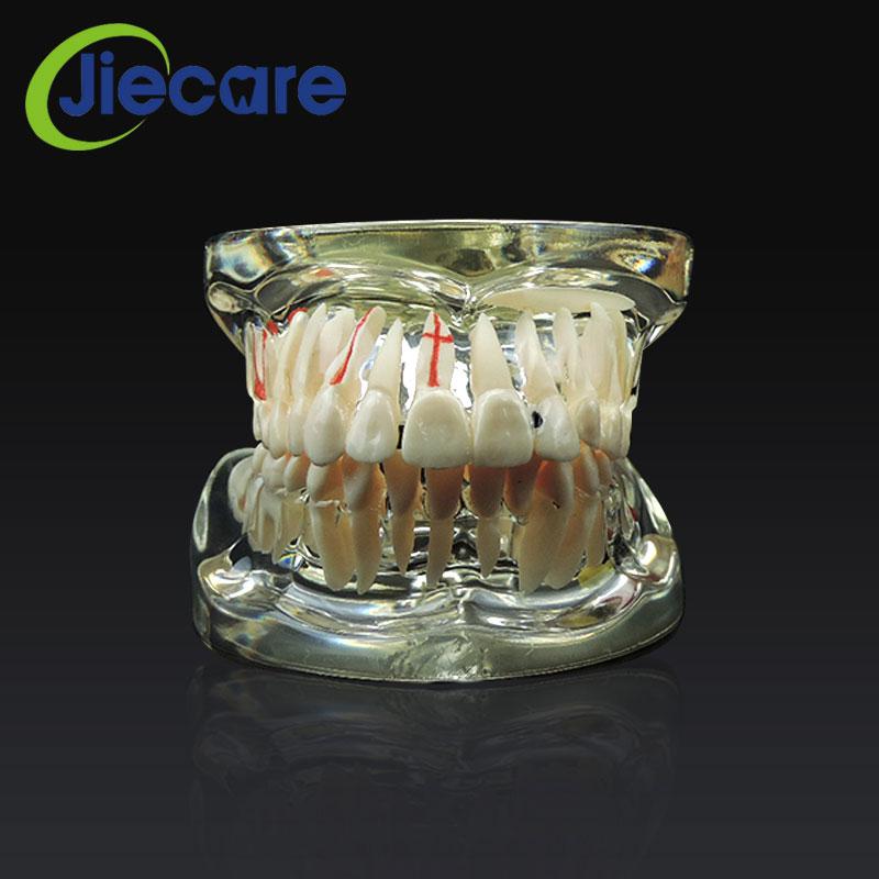 1 предмет Новый Стоматологическая Исследование зубов Прозрачный взрослых Патологическая и болезни преподавание Зубы Модель съемный стома...