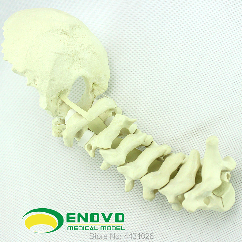 ENOVO Human cervical spine posterior system operation of PCF operation simulates bone Sawbone orthopedic model цена