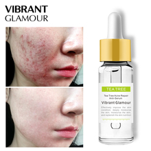 VIBRANT GLAMOUR Tea Tree Face Serum Acne Scar Treatment slime Green Oil Control Essence Anti pockmark Sensitive Skin Care