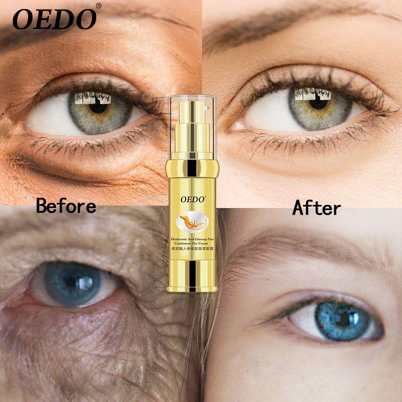 Condensado Creme Para Os Olhos Ácido hialurônico Ginseng Fino Delicado Brilhante Suave Soro Herbal Extrato do Ginseng Anti-Inchaço Círculo Escuro