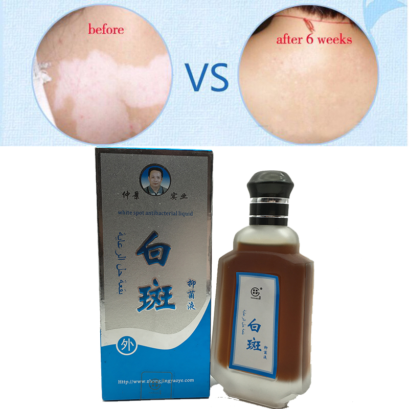 80ml Professional White Spot Antibacterial Liquid Chinese Medicine Care Solution Skin Vitiligo font b Treatment b