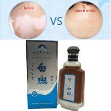 80ml Professional White Spot Antibacterial Liquid Chinese Medicine Care Solution Skin Vitiligo Treatment For Leukoplakia Disease