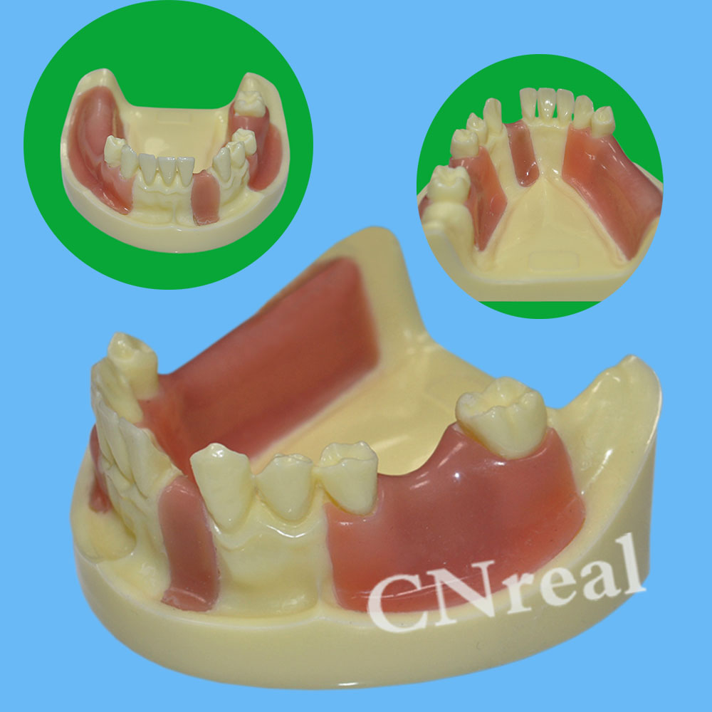 1 Piece Dental Implant Practice Teeth Model With Imitation Bone (Drilling) & Silicone Soft Gum (Cutting/Stitching)