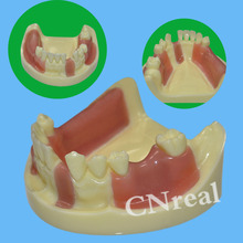 1 Pc Dental Implant Practice Model with Exercisable Gum (Cutting $ Stitching) dental soft gum practice teeth model for students with removable teeth deasin