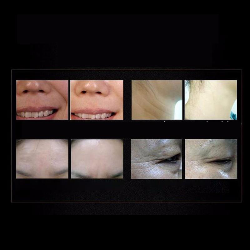 Argireline Hyaluronic Liquid Six Peptides Anti Wrinkle Anti Aging Skin Whitening Cream Instantly Ageless Skin Care Face Care 6