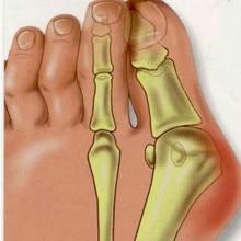1 pair Feet Care Pedicure Soft Gel Valgus Pro Hallux Valgus Sosu Valgus Pro Health Monitors For Foot Callus free shipping