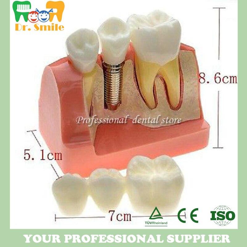 Modèle de dents de démonstration de pont de couronne d'implant d'équipement dentaire
