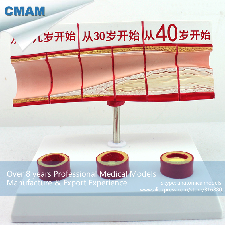 12484 CMAM-HEART08 Artery w Plaque Buildup Anatomy Study Model, Medical Science Educational Teaching Anatomical Models cmam a29 clinical anatomy model of cat medical science educational teaching anatomical models