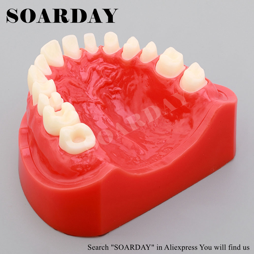 SOARDAY Dental Preparation Teeth Model Dentist Practice Model Teeth Replaceable teeth orthodontic model ceramic braces wrong jaw demonstration model orthodontics practice model