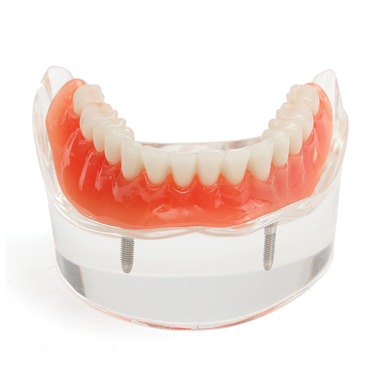 Lower Teeth Model Mandibular With Implant Restoration Tooth Dental Overdenture Interior Mandibular for Medical Teaching Study advanced simulation model of mandibular tissue decomposition simulation model of mandibular structures