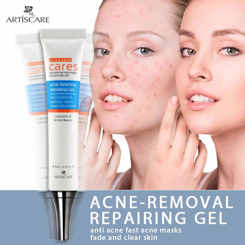 ARTISCARE Akne Behandlung Gel Akne Reinigung Creme Mitesser Entferner Akne Flecken Gesicht Akne Narben Reparatur Komedonen Pickel 2PCS