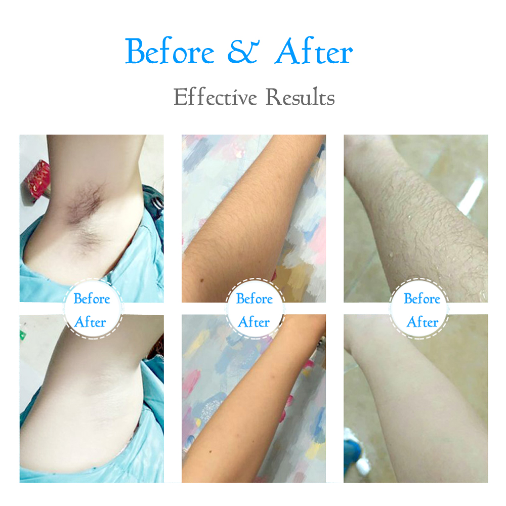 IceCooling Man Women IPL Laser Home Use Permanent Hair Removal Machine For Face Body Armpit Underarm Bikini Leg Laser Epilator in Epilators from Home Appliances