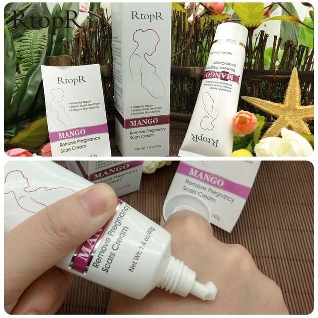 Mango Remove Pregnancy Scars Acne Cream Stretch Marks Treatment 5