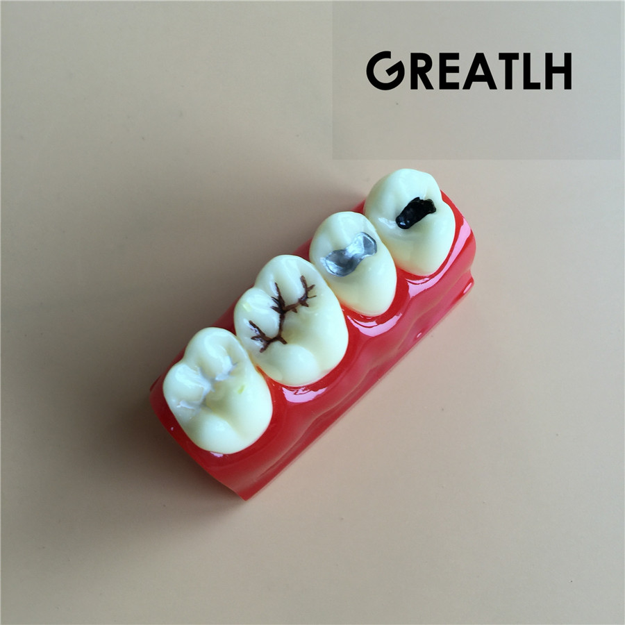 Dental Caries model Treatment for sealant and lnlay demonstration model Dentist Patient Communication Model dental caries developing illusteation tooth model demonstration teach patient