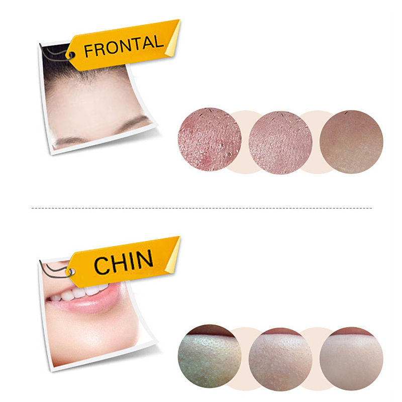 Mascarilla negra Facial salud succión nariz con acné removedor de espinillas Peeling Off cara con espinillas cuidado Mud Facial-35