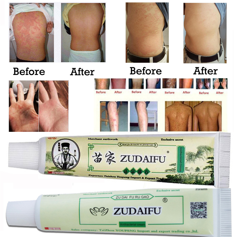 Dropshipping ZUDAIFU Skin Psoriasis Cream Dermatitis Eczematoid Eczema Ointment Treatment Psoriasis Cream Skin Care With Box