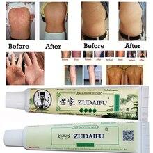 Dropshipping ZUDAIFU Skin Psoriasis Cream Dermatitis Eczematoid Eczema Ointment Treatment Psoriasis
