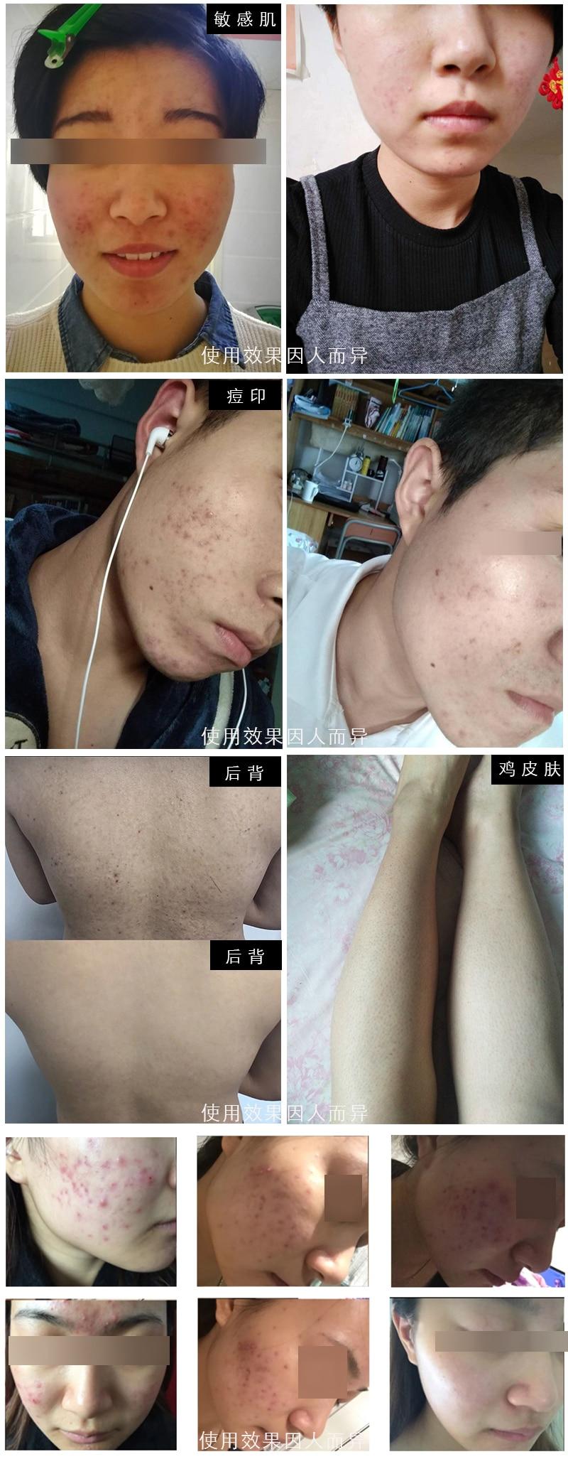 bha esfoliante facial cleaner cravo acne pimple remover remendo acne creme