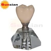 131197 New Implant Model(Three Part) ,teeth model,dental teeth models,tooth model
