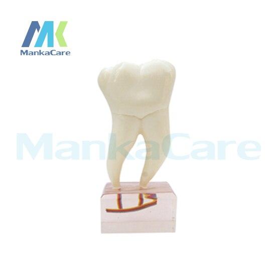 Manka Care - 6Times Anatomy Teeth Model Oral Model Teeth Tooth Model