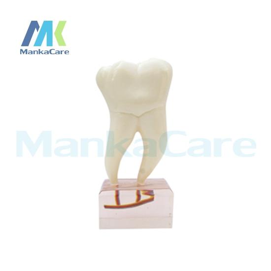 Manka Modelo Dentes Oral Care-6 Vezes Anatomia Modelo Dente Dentes Modelo