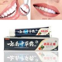 Новый китайской медицины зубная паста вкус 180 г снятия устные язвы Холли кровоточивость десен боль отбеливание