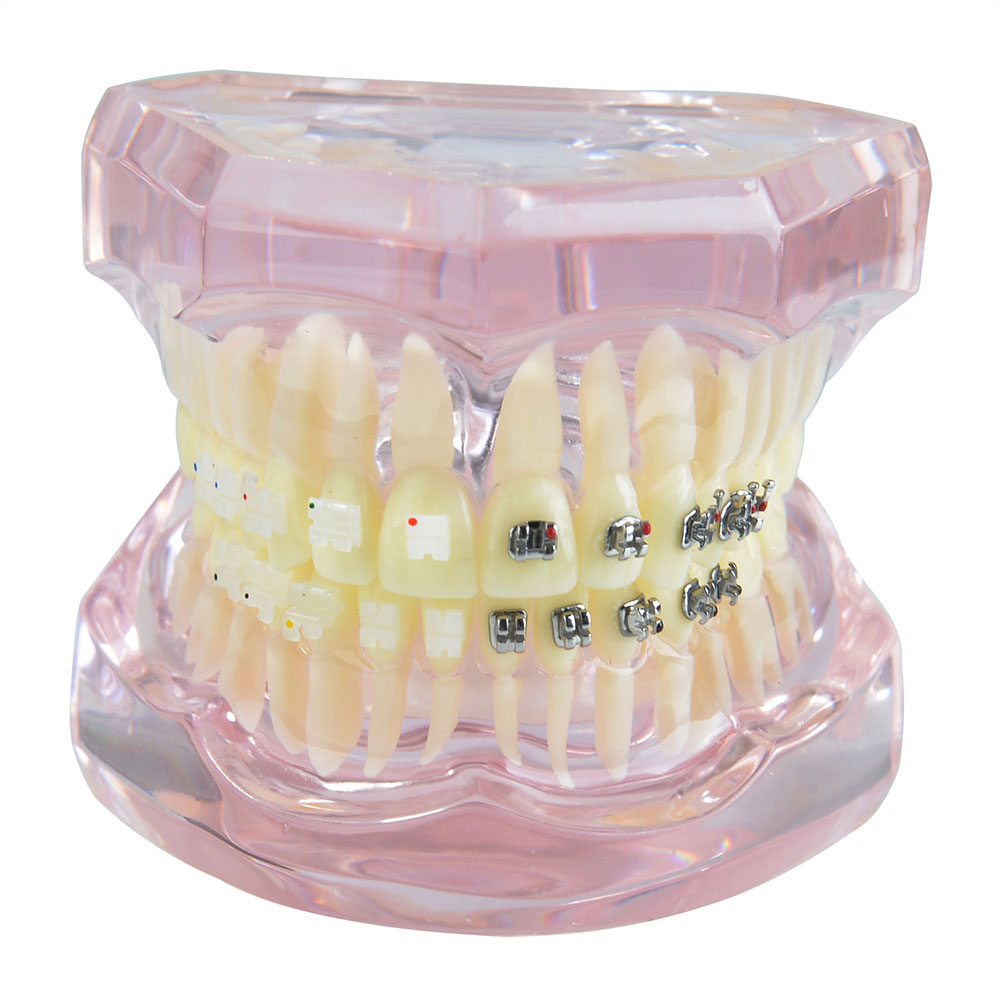 Dental Prosthesis Teeth Model With Metal Ceramic Bracket Brace Dentist Model Denture Teaching Study Model Technician Tools teeth model blue dental orthodontics communication model with 4 types of brackets