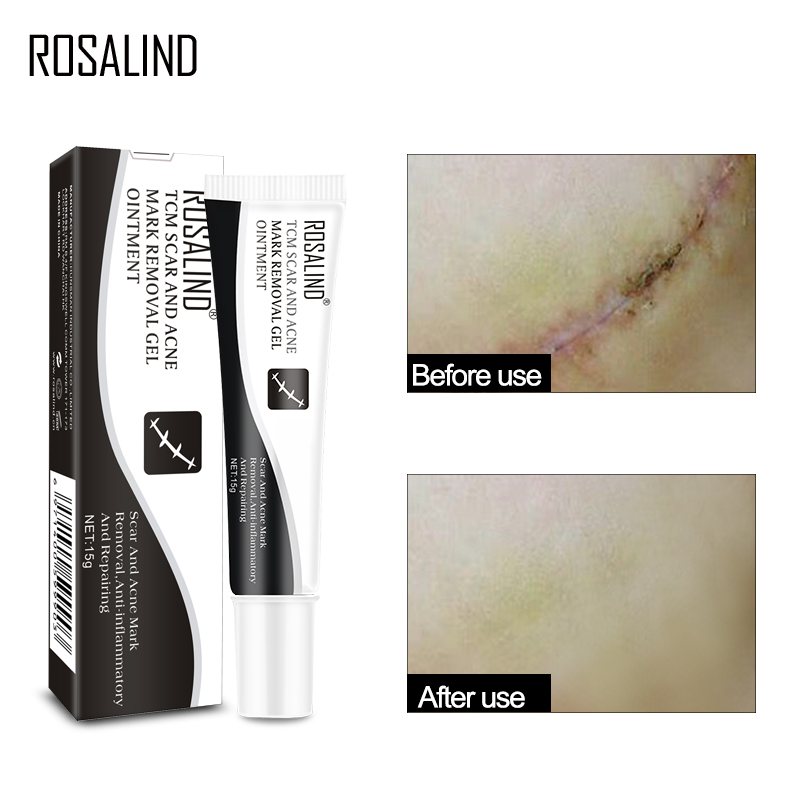 ROSALIND Scar And Acne Mark Removing Anti-Inflammatory And Repairing Skin Cream Ginseng Essence Skin Care Gel Ointment