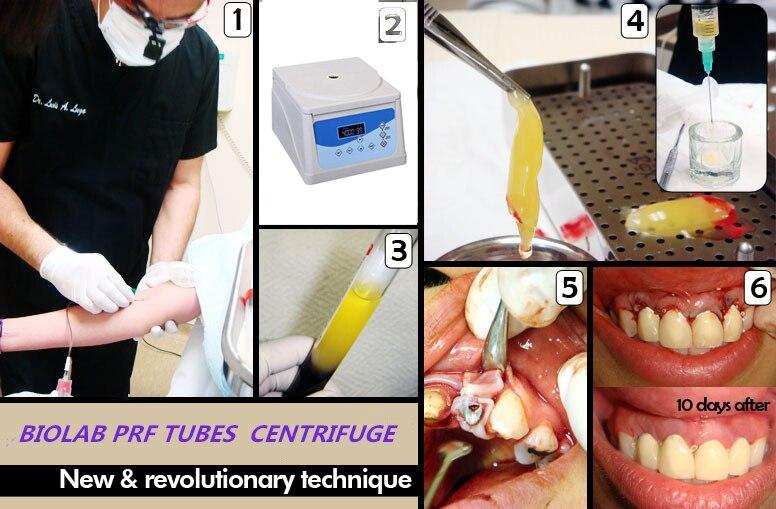 Wirówka z fibryną o wysokiej zawartości płytek krwi, probówka - Hygiena jamy ustnej - Zdjęcie 2
