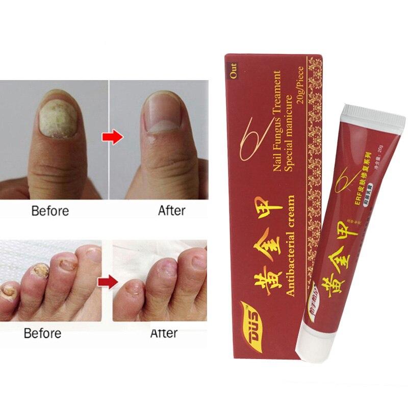 2019 New Sale Nail Fungus Treatment Ointment Treatment Toe Nail ...