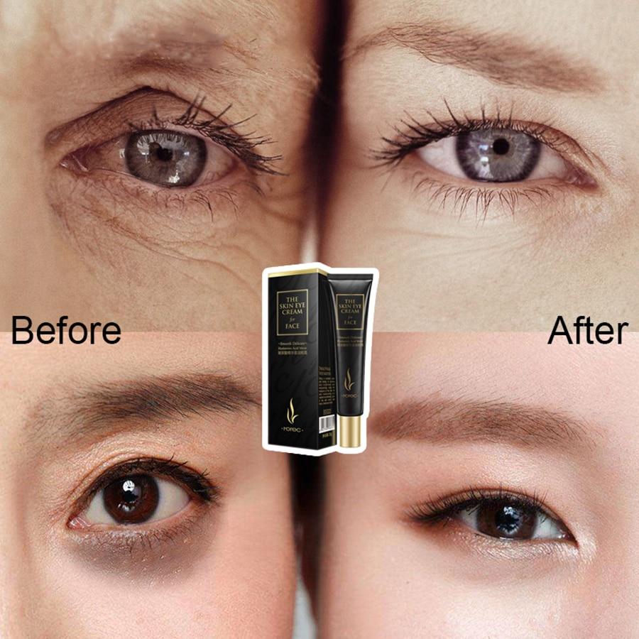 Laikou Eye Cream Hyaluronic Acid Eye Serum Wrinkle Anti Wrinkle
