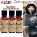 3 unids productos de cuidado de pelo denso Líquido Esencia Del Crecimiento Del Pelo la Pérdida de Cabello tratamiento Original Andrea Cabello aceite de suero de crecimiento rápido