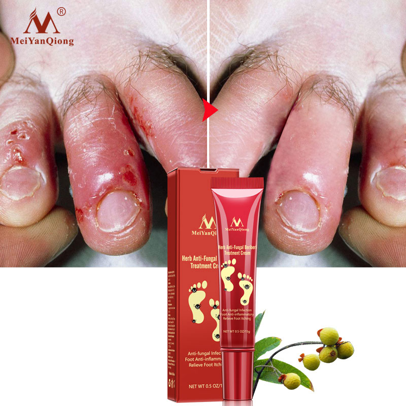 MEIYANQIANG Anti-fungal Infection Foot Anti-inflammatory Relieve Foot Itching Herb Beriberi Treatment Cream !