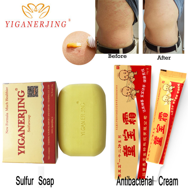 yiganerjing Sulfur Soap Skin Conditions Acne Psoriasis Cream Seborrhea Eczema Anti Fungus Bath whitening soap shampoo soap