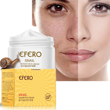 Snail Serum Whitening Cream for Face Skin Care Anti Aging Anti Wrinkle Cream Acne Remover Day Cream Moisturizing Lifting Firming 1set skin whitening snail cream face care ageless reduce scars acne moisturizing anti wrinkle face lift firming cream skin care