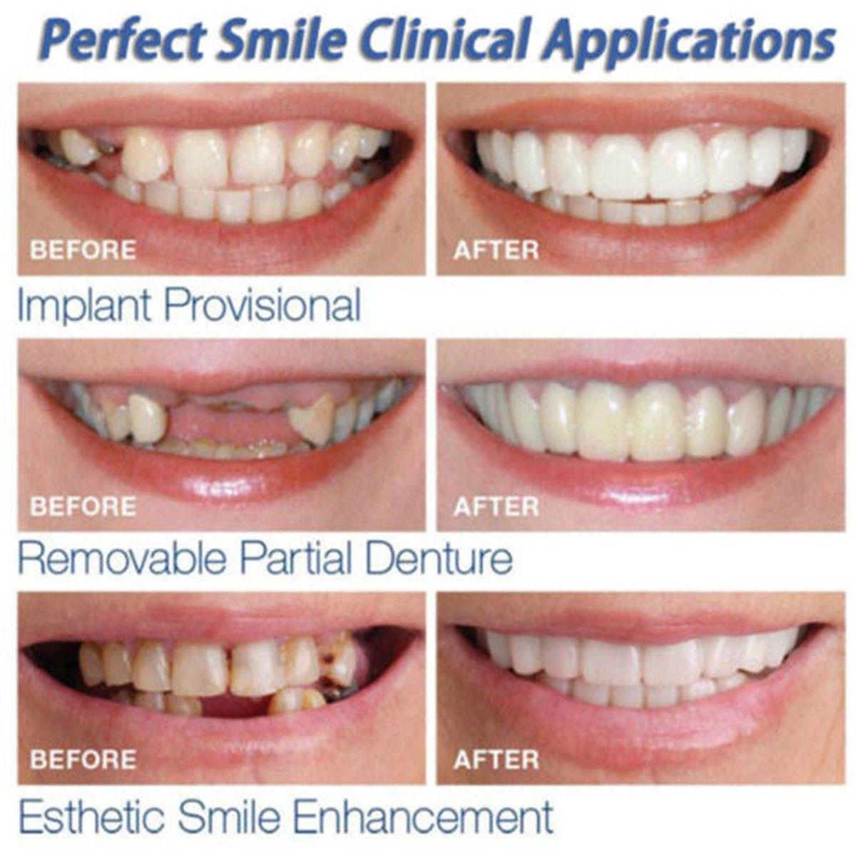 Beautiful Teeth Cover Denture  Instant Smile Comfort Fit Flex Cosmetic Teeth Denture Teeth Top Cosmetic Veneer 2