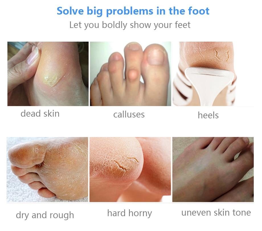 4pc=2pair Exfoliating Foot Mask Pedicure Socks for Feet Peeling Mask Remove Dead Skin Heels Rose Foot Peel Mask for Legs efero 1
