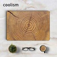 Wood Tree Ring Grain Laptop Skin Sticker Decal For Macbook Sticker Pro Air Retina 11 12