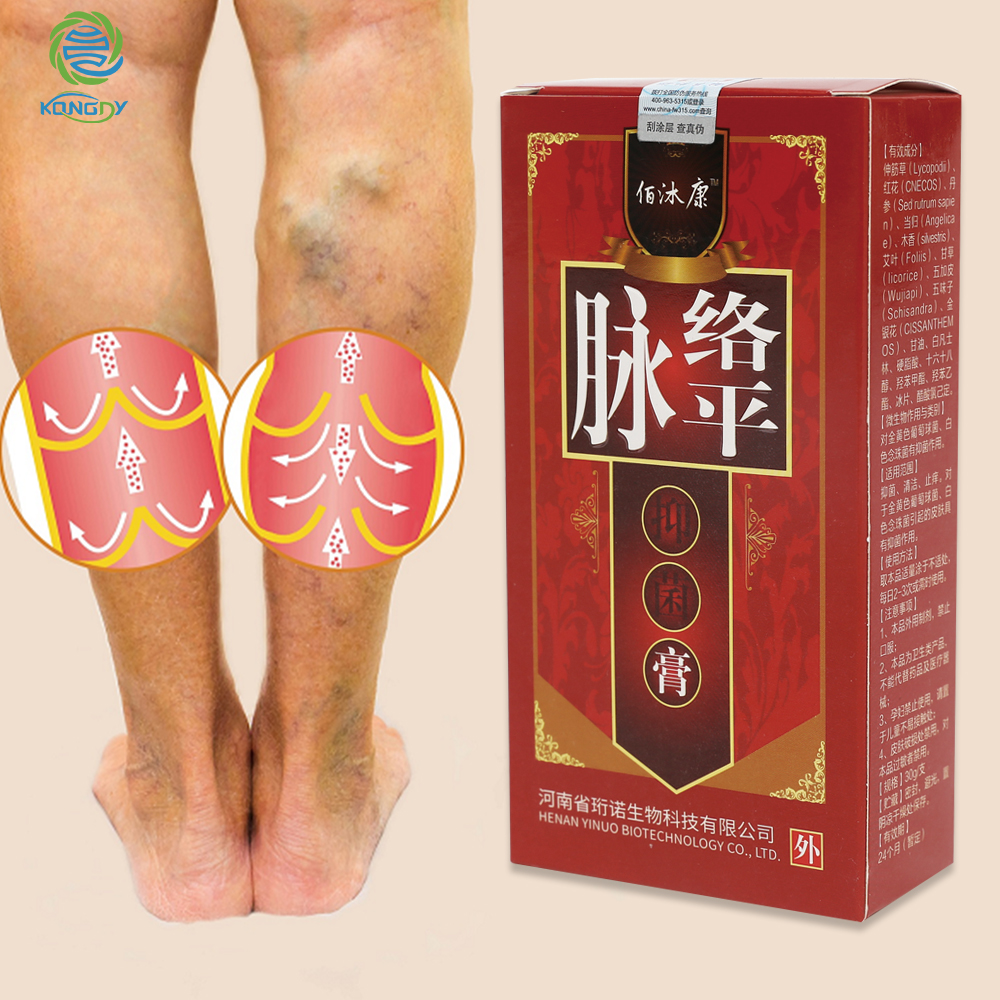 KONGDY Varicose Veins Treatment Cream Varicosity Angiitis Remedy Ointment Relief Veins Pain Phlebitis Legs Varicose Veins Cream