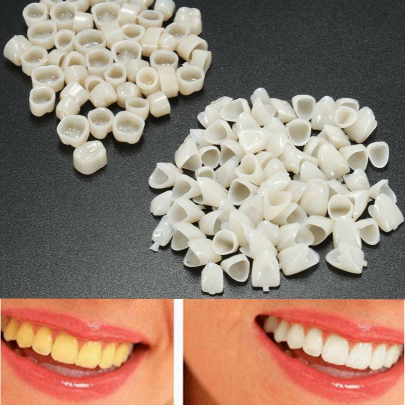 120pcs Dental Material Teeth Mixed Temporary Crown 70pcs Anteriors Front Tooth 50pcs Molar Posterior Veneers Teeth Dentist Tool