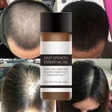 20 ml Schnelle Haar Wachstum Essenz Produkte Ätherisches Öl Flüssigkeit Behandlung Gegen Haarausfall Haarpflege Andrea