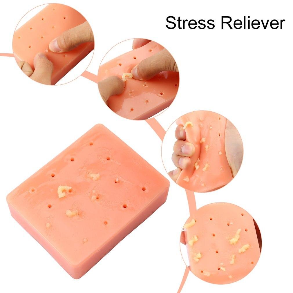 Espinha popper popper novidade piadas práticas pêssego engraçado removedor parar espremer acne mole anti estresse brinquedo presente de natal