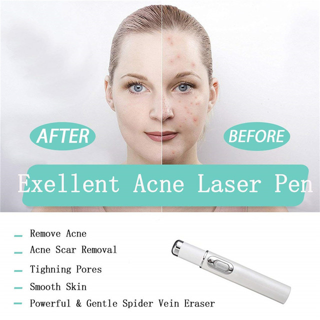 Hot Blue Light Therapy Acne Laser Pen Facial Massager Treatment Soft Scar Wrinkle Acne Removal Device Face Treatment 2