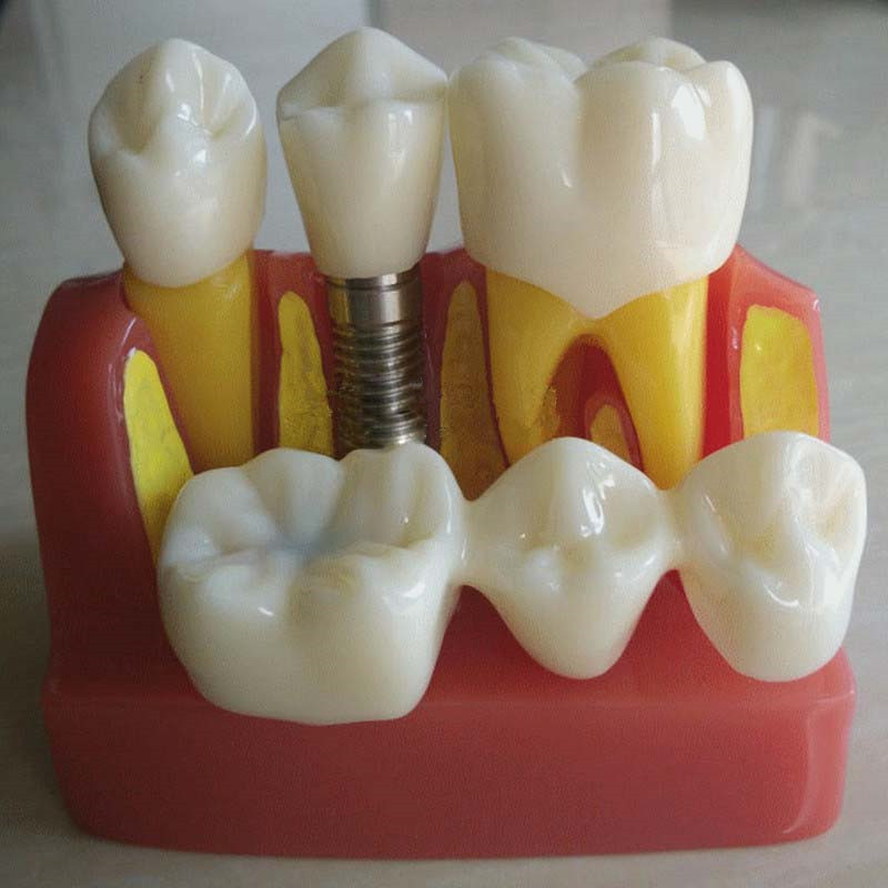 1 Set Dental Implant Analysis Crown Bridge Demonstration Dental Teeth Model attachments retaining implant overdentures