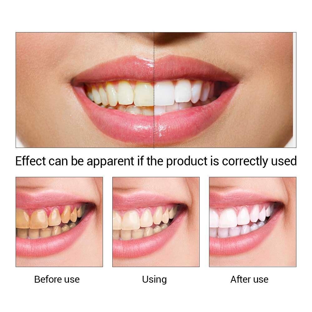 Hautpflege Serum Lanbena Zähne Bleaching Essenz Pulver Oral Hygiene Reinigung Serum Entfernt Plaque Flecken Zahn Bleichen Dental Werkzeuge Zahnpasta
