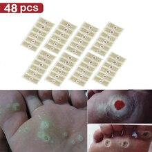 Шт. 48 шт. ног пластырь средство для удаления мозолей Remover бородавки отрывной пластырь здоровье и гигиена для снятия боли мозолей пластырь медицинский